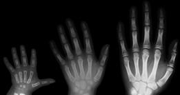 image of hand xrays